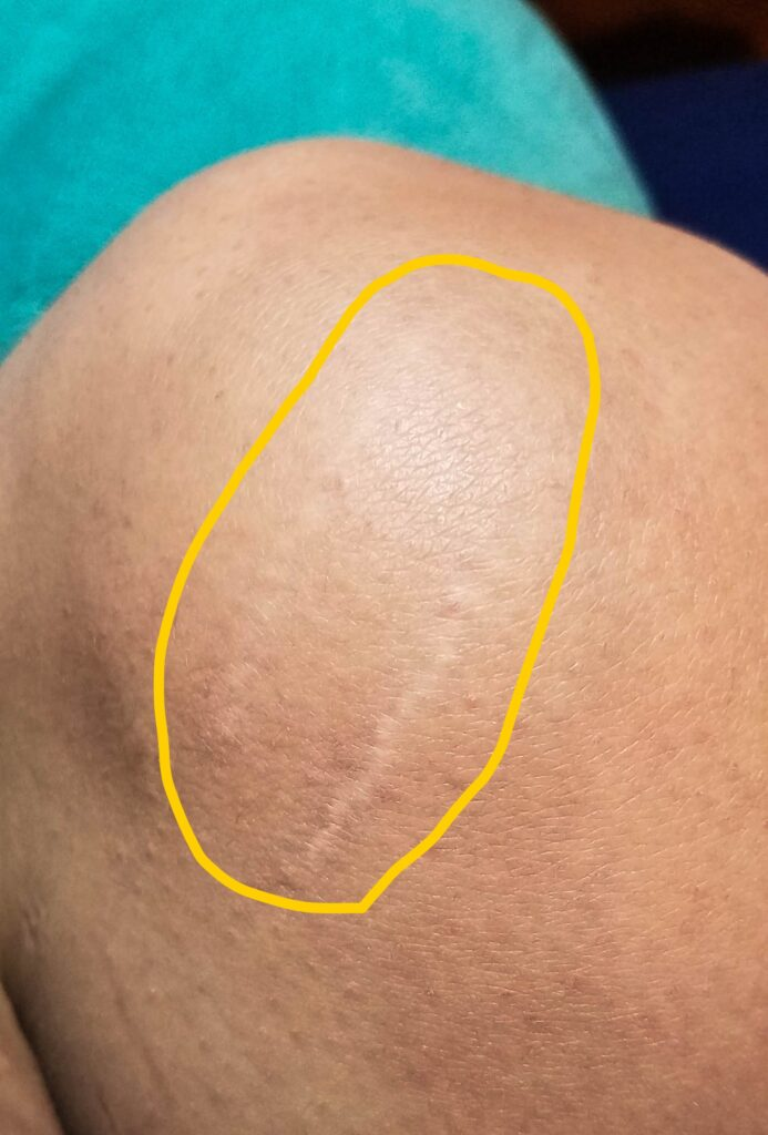 Stretch marks on knee