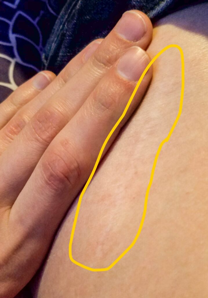 Bone graft scar on hip